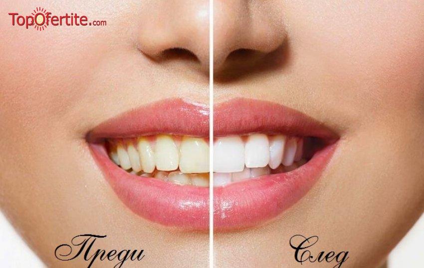 Почистване на зъбен камък и плака, полиране, обстоен преглед + ПОДАРЪК домашно избелване на зъбите от БЮТИДЕНТ за 55 лева.