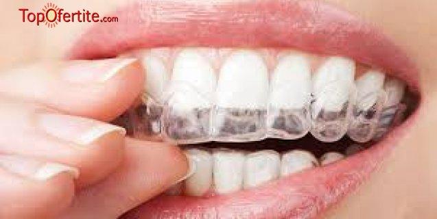 Домашно избелване на зъби и обстоен профилактичен преглед от Дентална клиника Персенк за 99.99 лв.