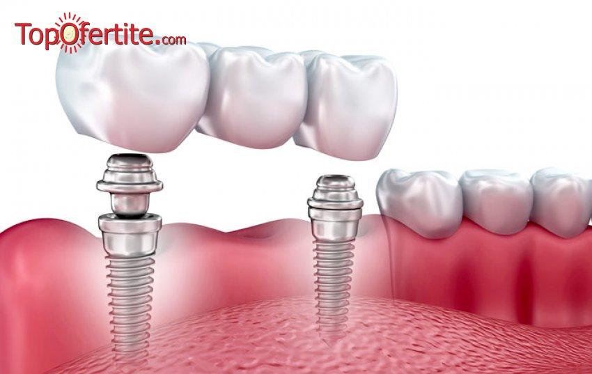 Поставяне на зъбен имплант SM Clnic за 730 лв.