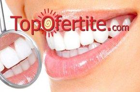 Естетична фотополимерна пломба за дъвкателни или предни зъби от Дентална клиника СитиДент на цена 19,90 лв.